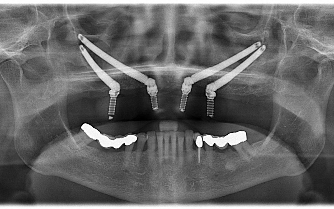 Zigomatic Peri-Implant