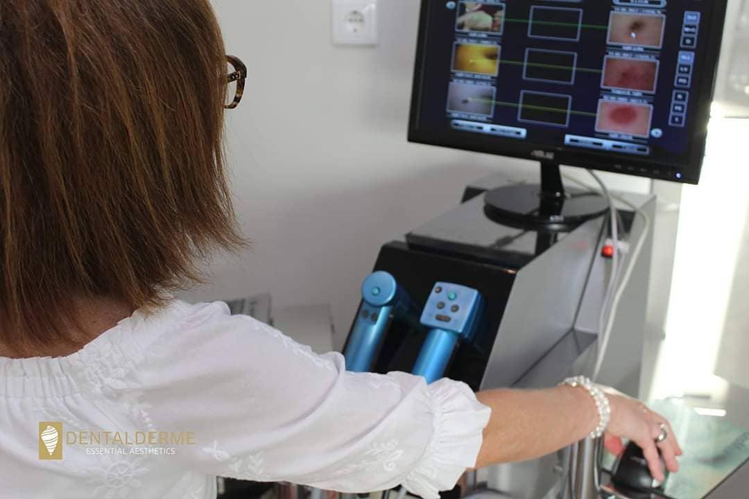 Dermatoscopia Digital Computarizada Dentalderme